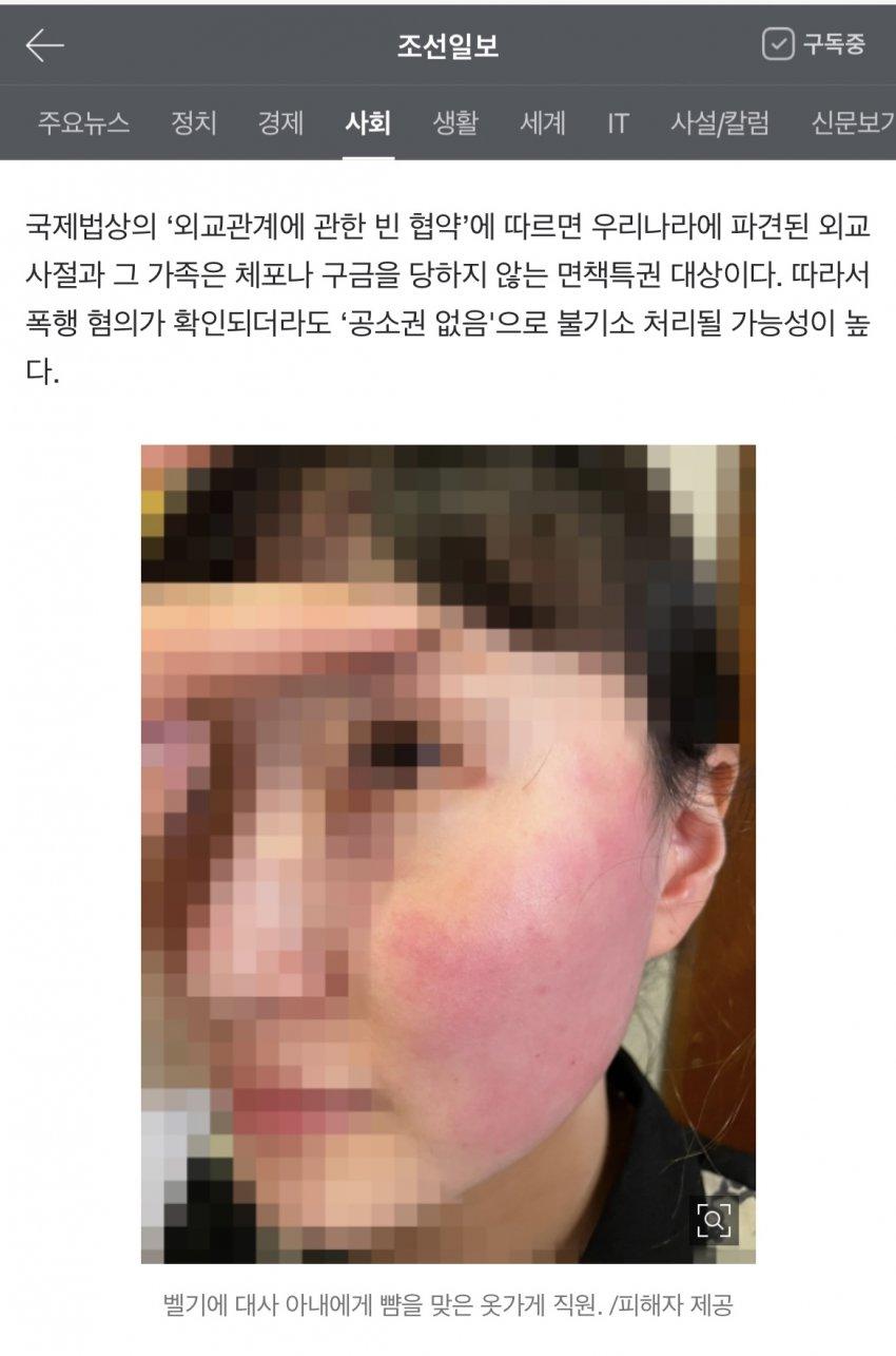 viewimage.php?id=29afd12be4ed36a379ec&no=24b0d769e1d32ca73fec81fa11d02831b46f6c3837711f4400726c62de61225d6ecc5e252a836466b276d0b18f490c250e8c059f1cf4e48bf01bd8984f28cdb264111876f4cb27be7ced4ec96ff4de586e3945a9df6de408dfe35a3ad1edb161c53b2d70d1a58176affe